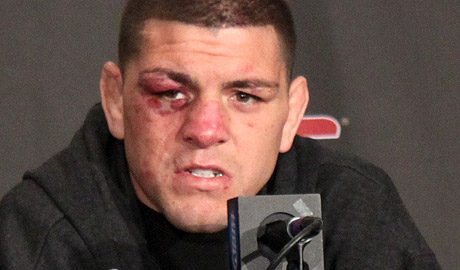 Nick-Diaz-UFC-137-Post_1365-460x270