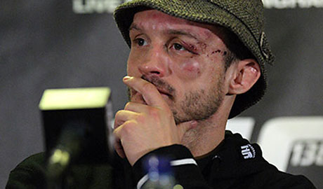 UFC138_Post_Brad-Pickett-460x270