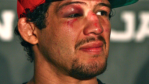 Gilbert Melendez Strikeforce