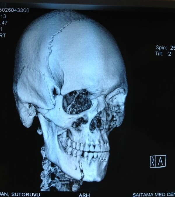 Stefan Struve Broken Jaw X-Ray