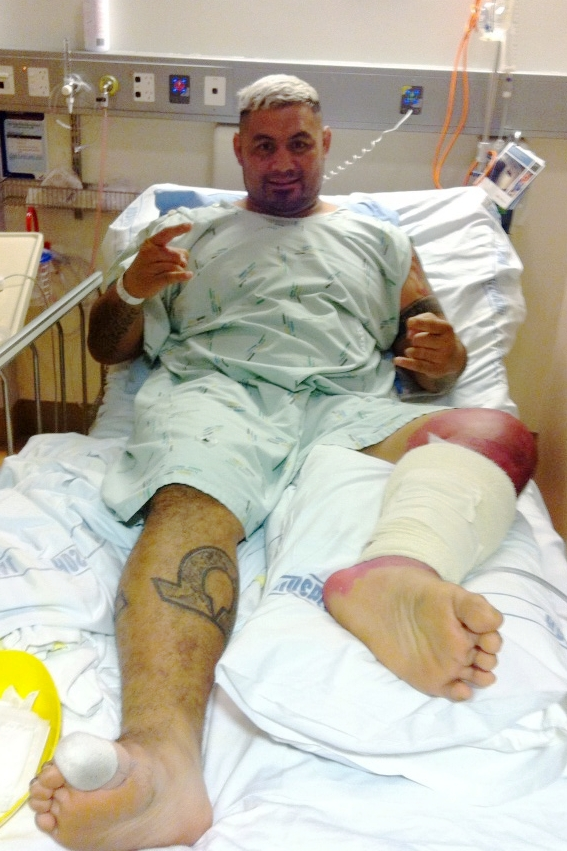 Mark Hunt infection surgery
