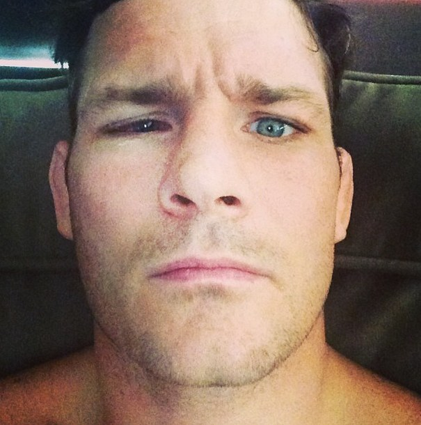 Michael Bisping Detached Retina