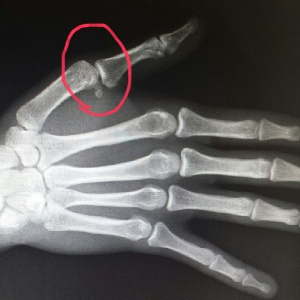 Amanda Nunes Dislocated Finger