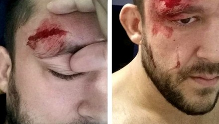 Tom DeBlass Forehead Gash-750x370