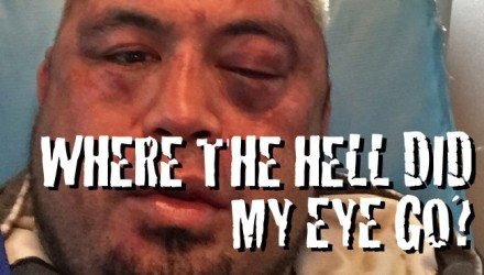 Mark Hunt where did my eye go