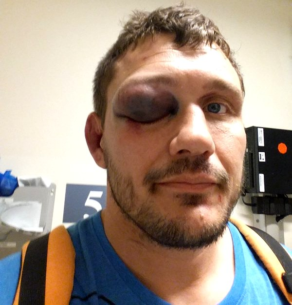 Matt Mitrione Twitter broken orbital