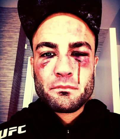 Eddie Alvarez busted up face on Instagram