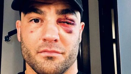 Eddie Alvarez ONE Championship debut injuries