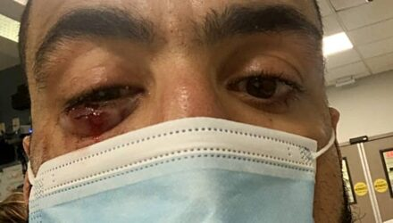 Belal Muhammad UFC Vegas 21 eye injury